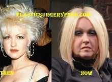Cyndi Lauper Facelift and Botox