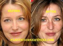 Gillian Anderson Nose Job Rhinoplasty