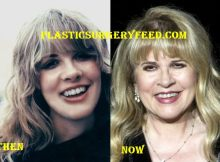 Stevie Nicks Botox and Facelift