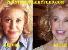 Joan Kennedy Nose Job Rhinoplasty