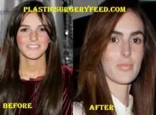 Ali Lohan Botox