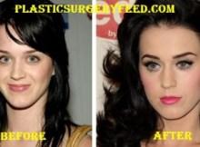 Katy Perry Nose Job Rhinoplasty