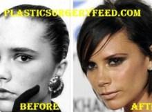Victoria Beckham Botox and Facelift