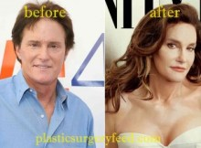 Bruce Jenner Before After