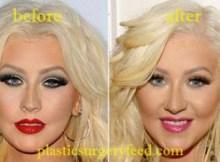 Christina Aguilera Botox