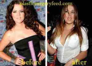 Kloe Kardashian Breast Implants