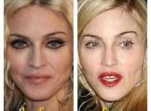 Madonna Lips Implant