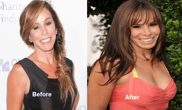 Melissa rivers boobs