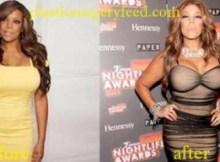 Wendy Williams Liposuction