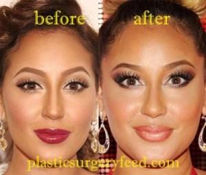 Adrienne Bailon Lip Implant