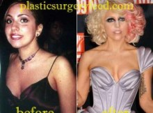 Lady Gaga Breast Implant