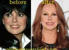 Marlo Thomas Facelift