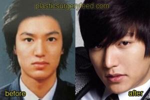 Lee Min Ho Plastic Surgery Feed 2