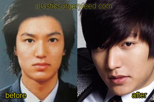 Lee Min Ho Plastic Surgery Feed 2