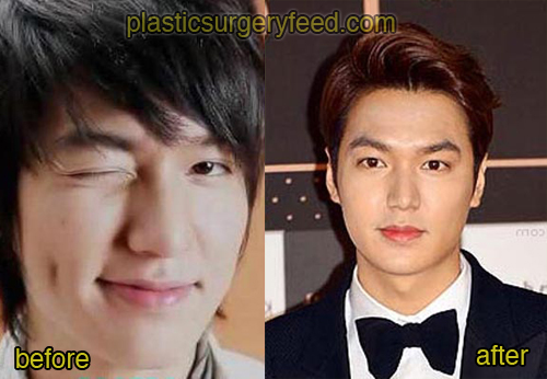 Lee Min Ho Plastic Surgery Feed 3