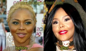 lil kim before and after plastic surgery 3