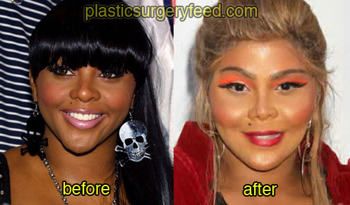 Lil Kim Before And After Plastic Surgery Plastic Surgery