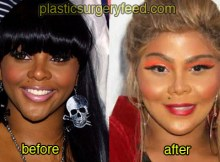 lil kim before and after plastic surgery 4