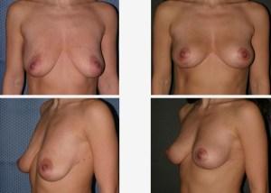 breastliftlg