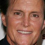 Bruce Jenner Plastic Surgery – Bad Facelift Before & After