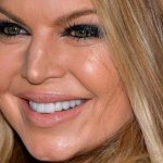Fergie Plastic Surgery (A Nose & Boob Job) Before & After