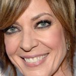 Allison Janney Plastic Surgery Before & After
