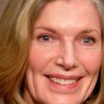 Susan Sullivan Plastic Surgery – Properly Done Facelift