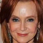 Swoosie Kurtz Plastic Surgery – Good Facelift