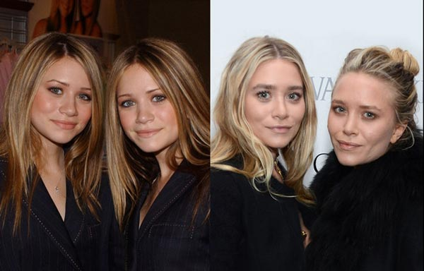 Ashley Olsen Plastic Surgery Before & After