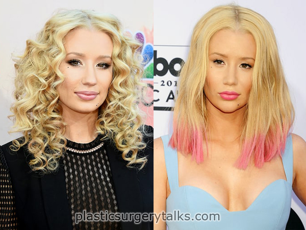 Iggy Azalea Plastic Surgery nose job