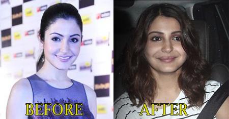 Anushka Sharma Lip Injection