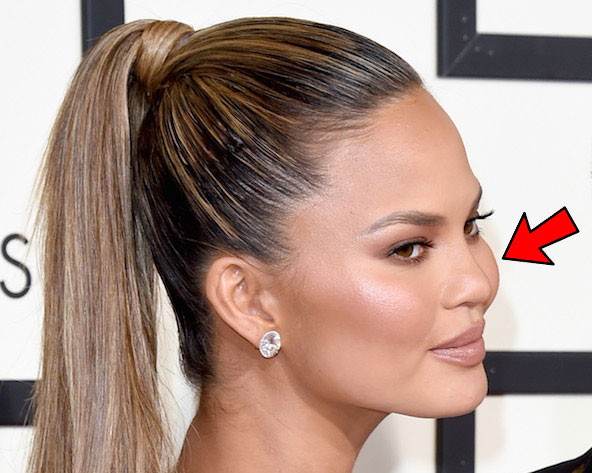 Chrissy Teigen Augmented Cheeks