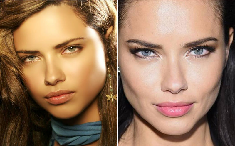 Adriana Lima chins plastic surgery before and after
