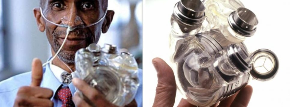 First Total Artificial Heart, AbioCor Implanted In Robert Tools Today In 2001