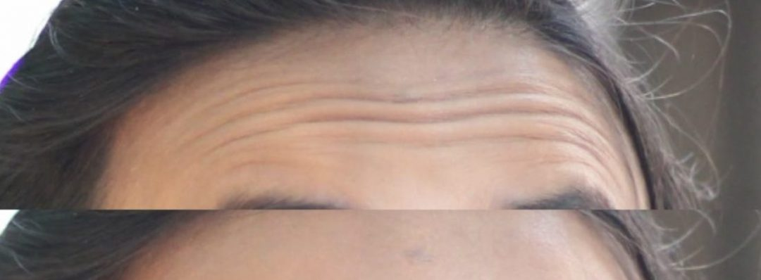 DIY: How To Prepare Homemade Treatments For Wrinkles On The Forehead