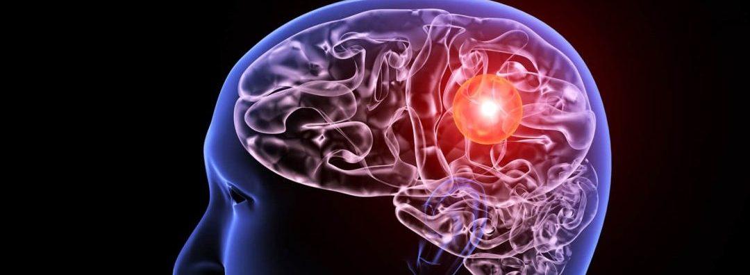 Brain Aneurysm : Causes, Diagnosis, Symptoms And Treatment
