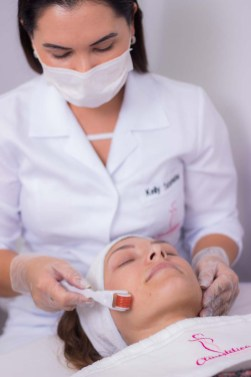 Estética - Microagulhamento