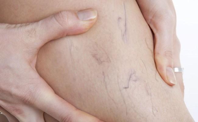 Treats-varicose-veins