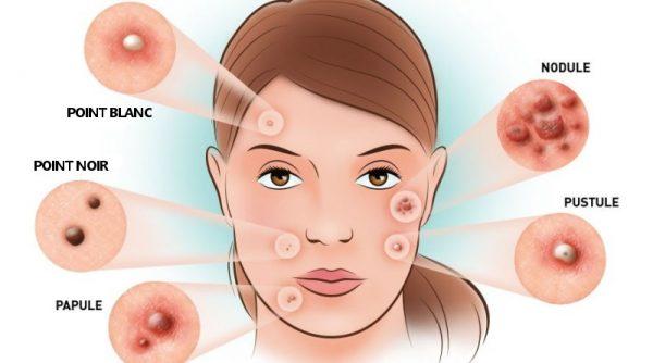 comment enlever les boutons du visage naturellement