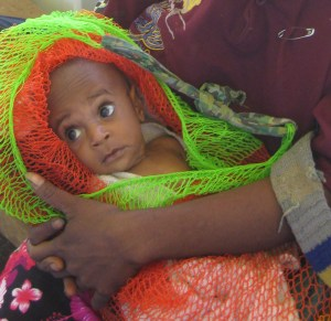 Kopi from Goilala was 5 months old and was suffering from TB - His mother died of it.