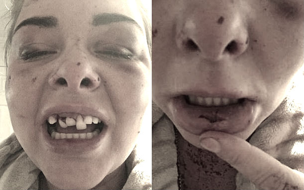 फेसबुक प्रोफाइलमा आफ्नो मात्र फोटो राखेको भन्दै प्रेमीले प्रेमिकाको तीनवटा दाँत झारिदिए