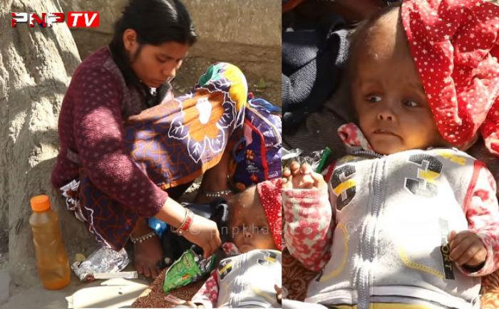 काठमाडौँमै भेटिए अचम्मका बालक, उपचारको लागि आमा सडकमा भिख माग्दै (भिडियो)