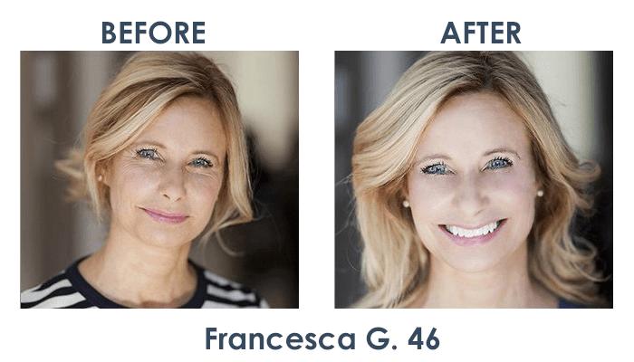 Derma ProMedics Results