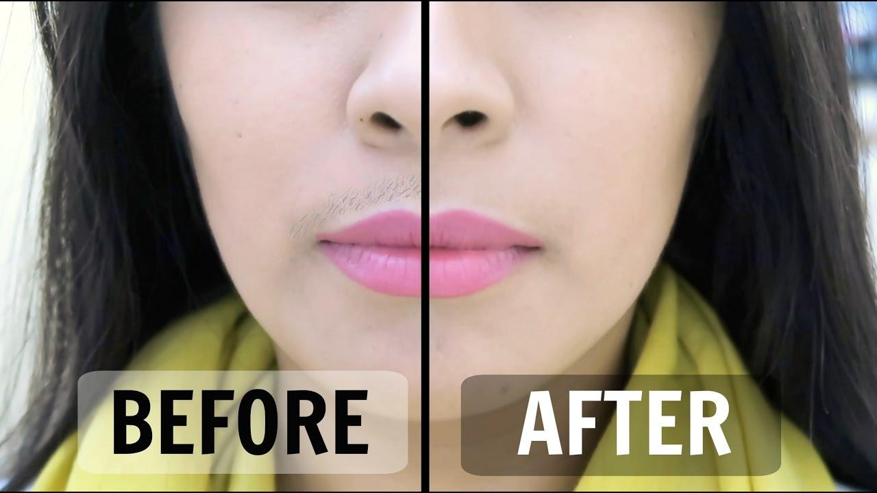 Female Mustache Remedies
