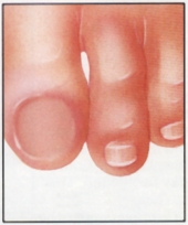 After_toenail_removal