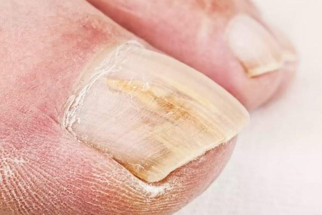 Tratamiento de Hongos en uñas y pies