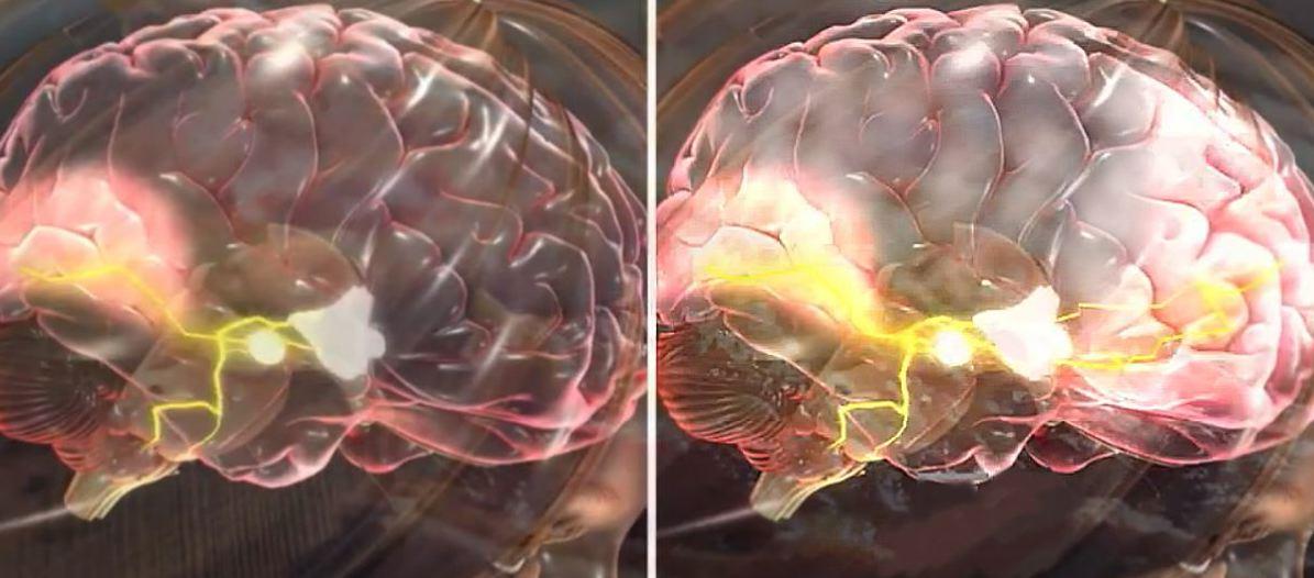 """doublebrain - Nova """"Pílula Inteligente"""" é lançada no Brasil. Seria esse o estimulante cerebral mais potente do planeta?"""
