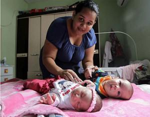 gemeos e1454504127214 300x234 - USP estuda possibilidade de alguns bebês terem gene protetor contra microcefalia