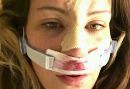 Miesha Tate posta foto de pós-operatório nas redes sociais