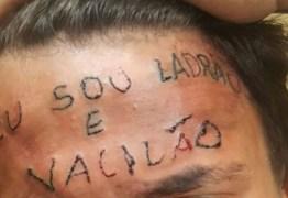 Adolescente que teve a testa tatuada como ladrão fará cirugia para retirada da tatuagem